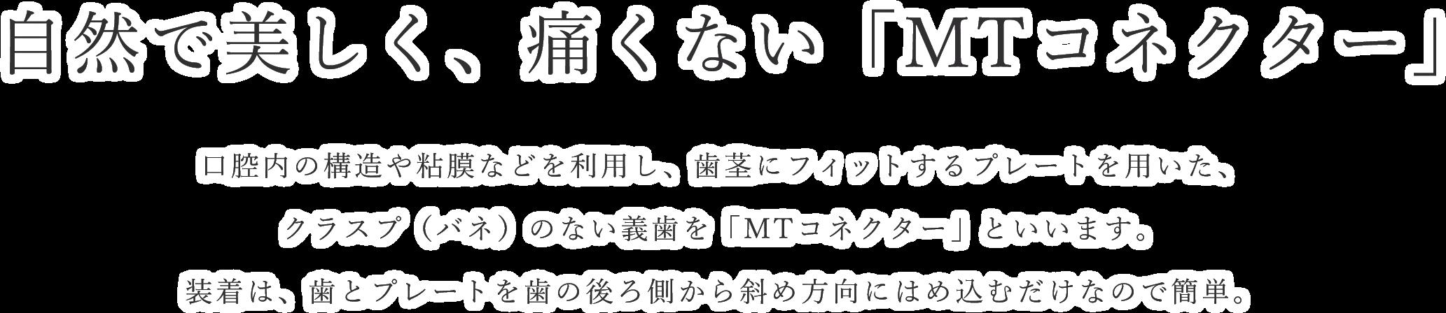 MTコネクター